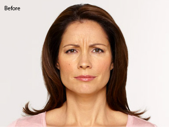 botox-before-after-latina-whittier-before