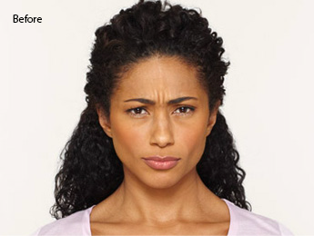 botox-before-and-after-african-american-south-before
