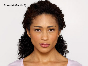 botox-before-and-after-african-american-whittier-month3