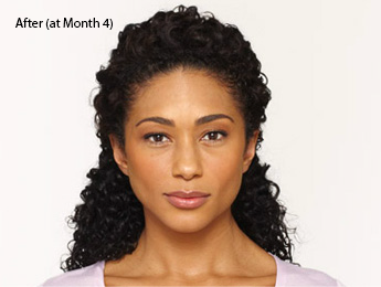 botox-before-and-after-african-american-whittier-month4