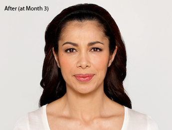 botox-before-and-after-latina-whittier-month3