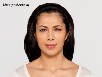 botox-before-and-after-latina-whittier-month4