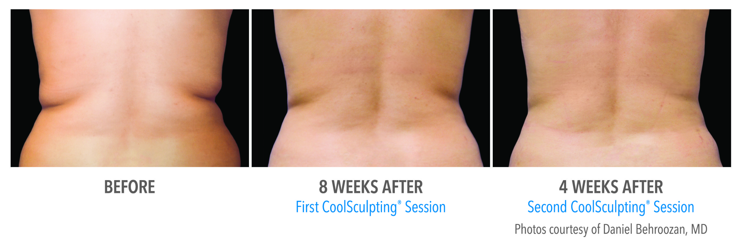 whittier-coolsculpting-back-flank-lower flank-coolsculpting