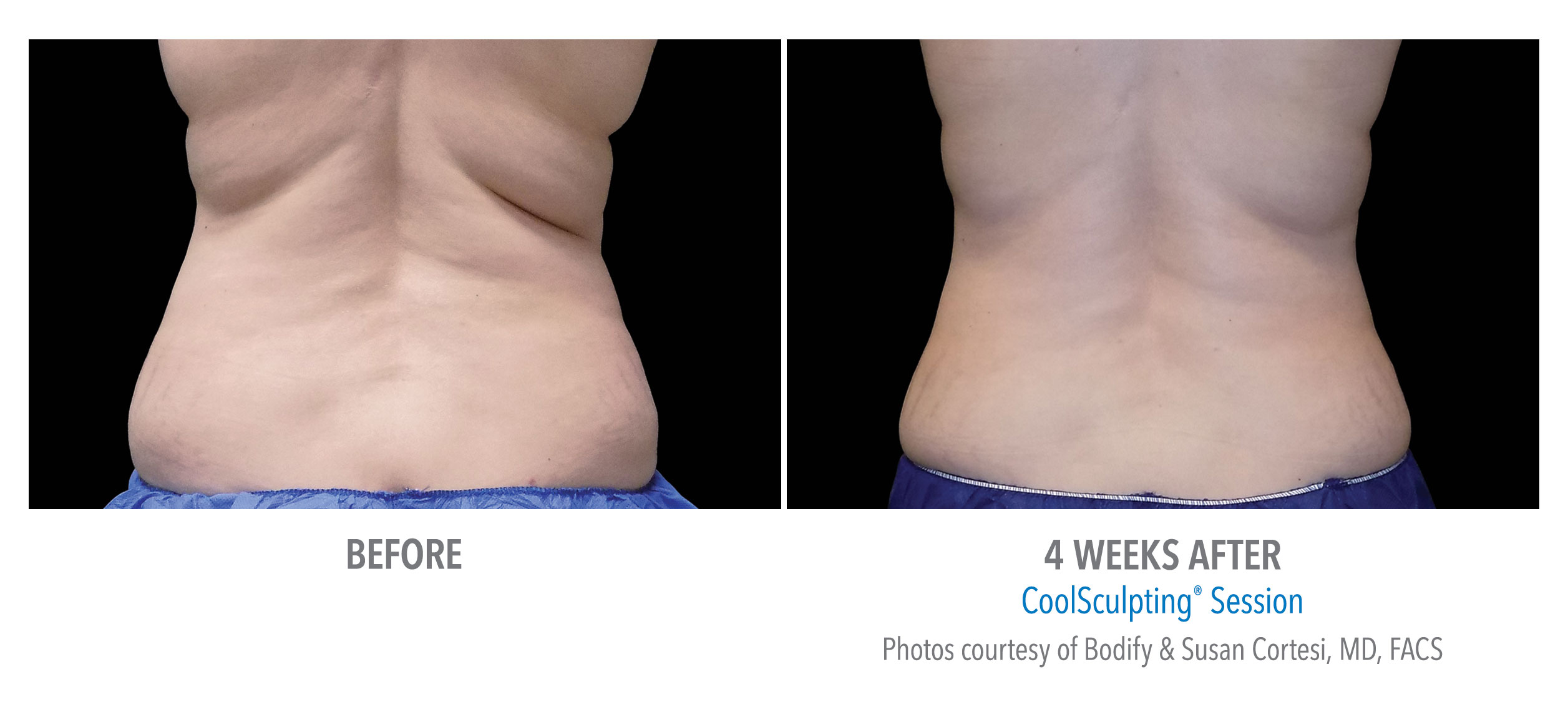 whittier-coolsculpting-back-flank-lower flank-coolsculpting2