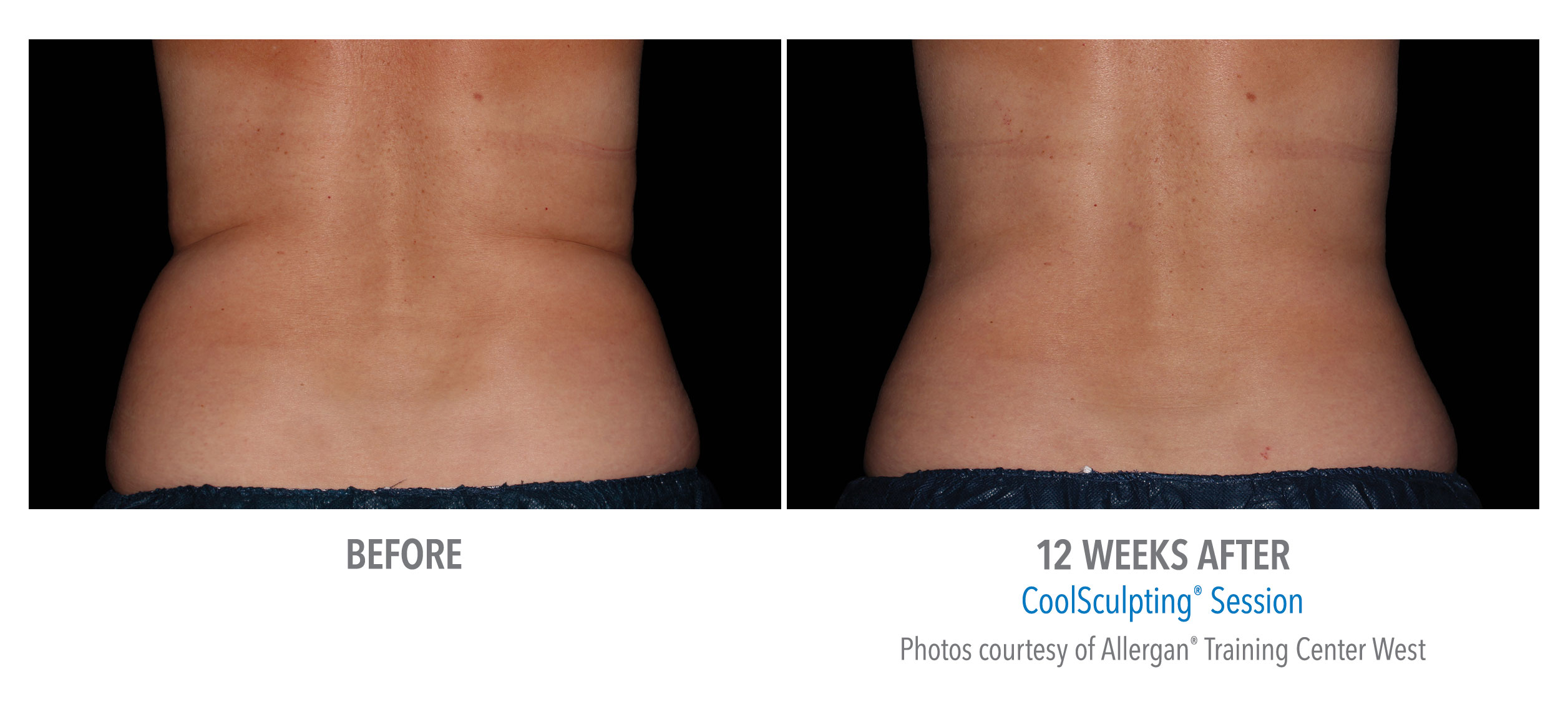 whittier-coolsculpting-back-flank-lower flank-coolsculpting6