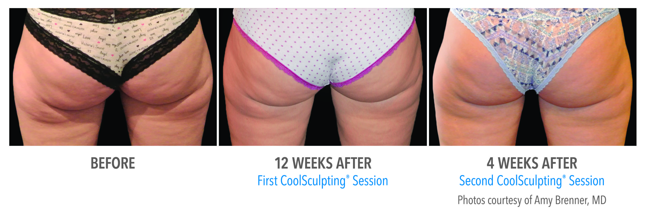 whittier-coolsculpting-thighs-banana-roll