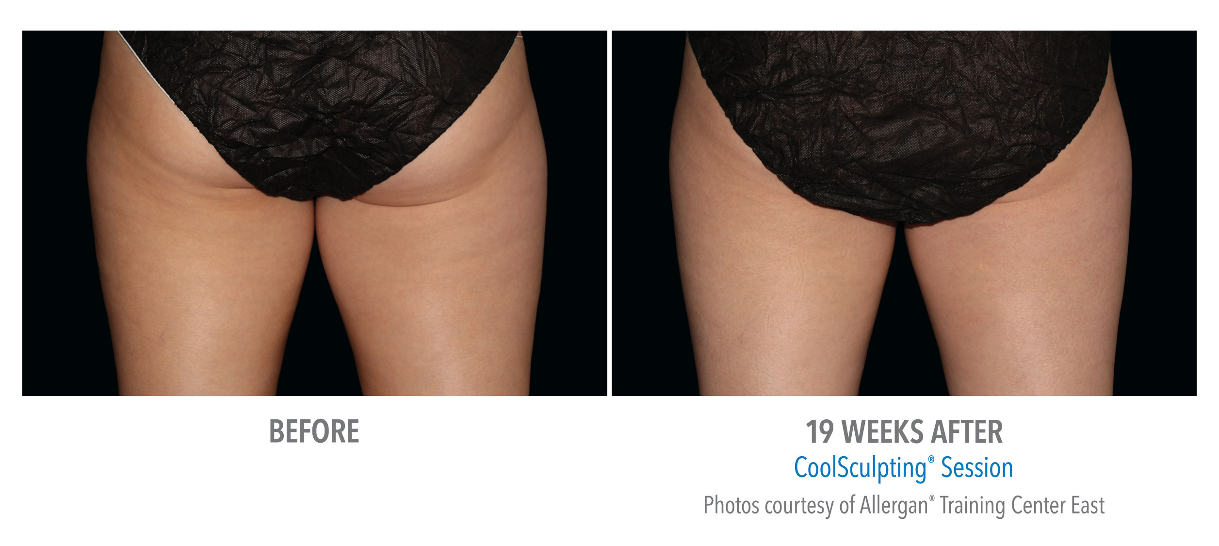 whittier-coolsculpting-thighs-inner-thigh-4