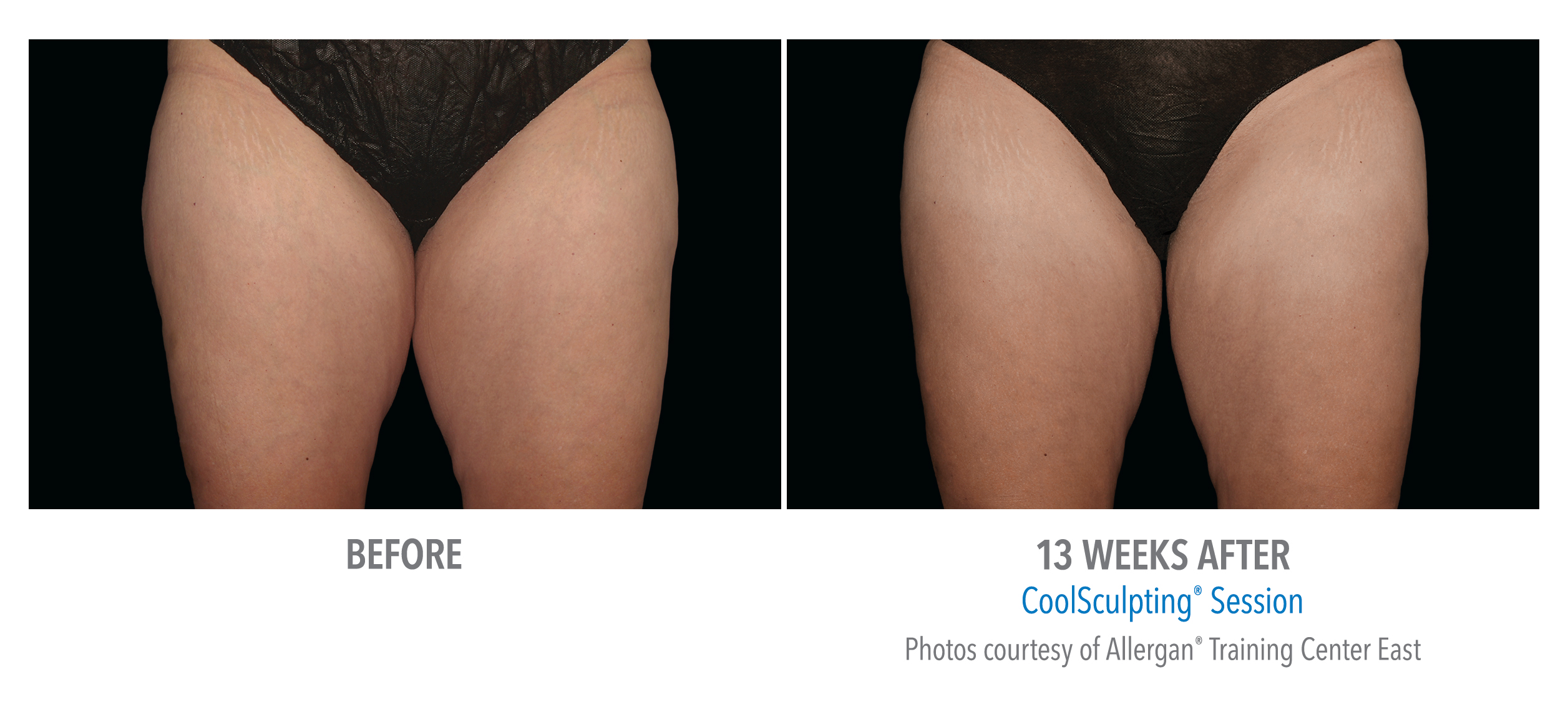 whittier-coolsculpting-thighs-inner-thigh-5