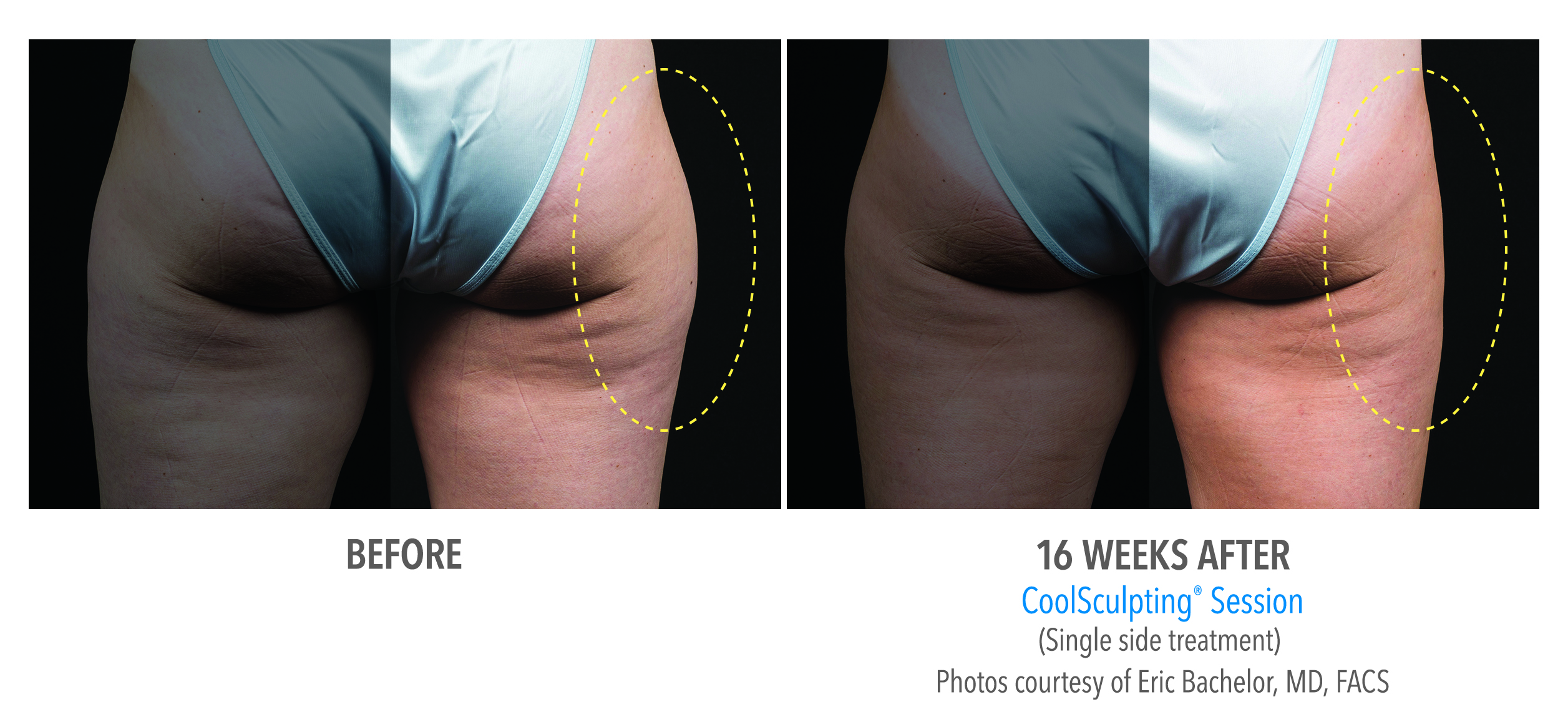 whittier-coolsculpting-thighs-outer-thigh-1