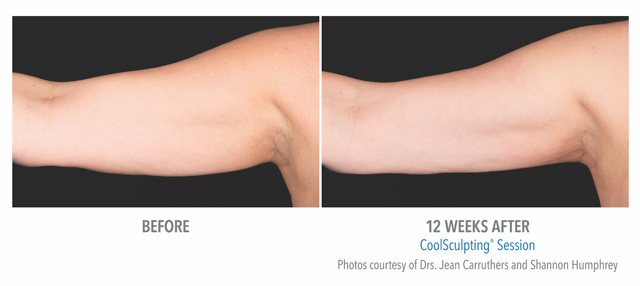 Coolsculpting arm Fat in whittier