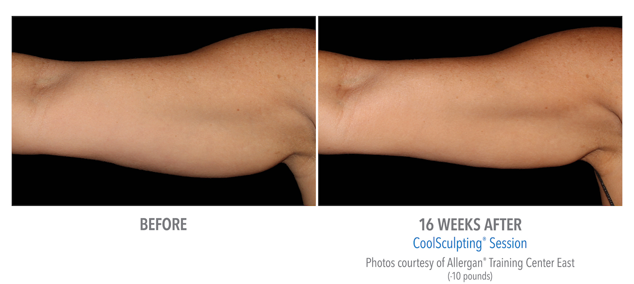 Coolsculpting arm Fat near whittier