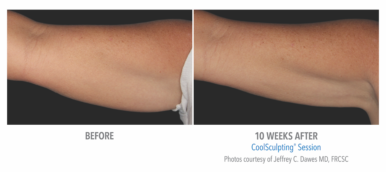 Coolsculpting arm Fat weight loss