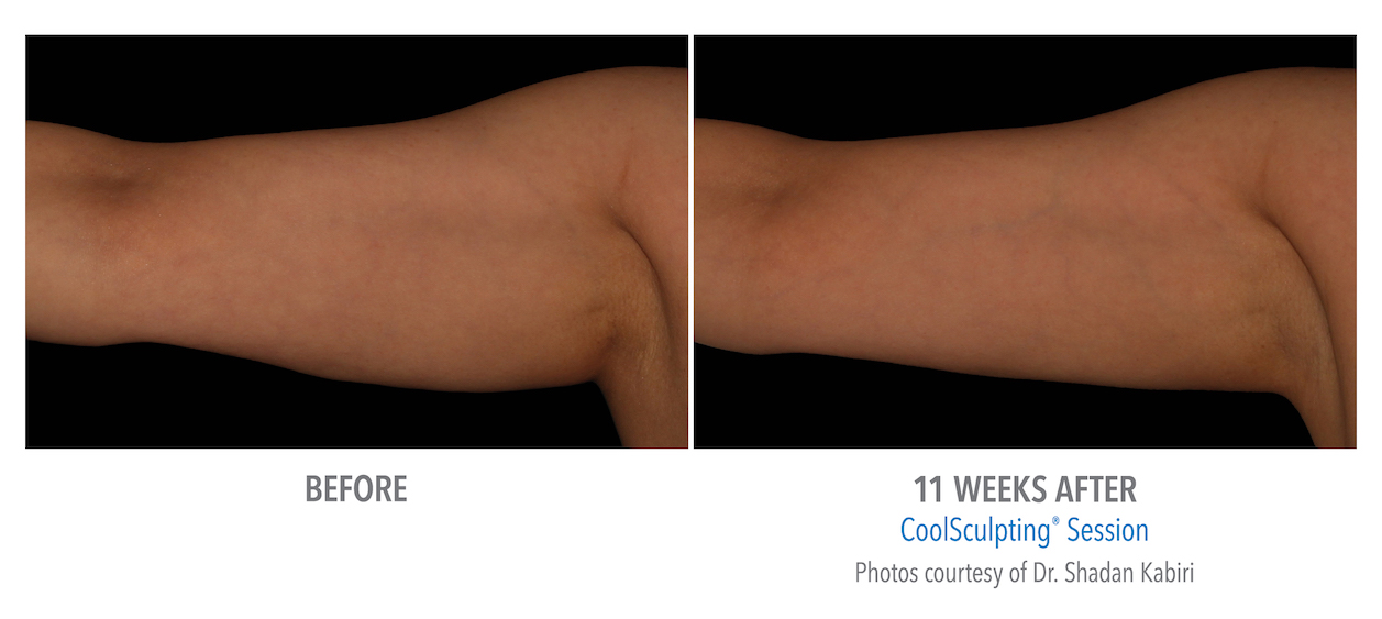 Coolsculpting arm Fat