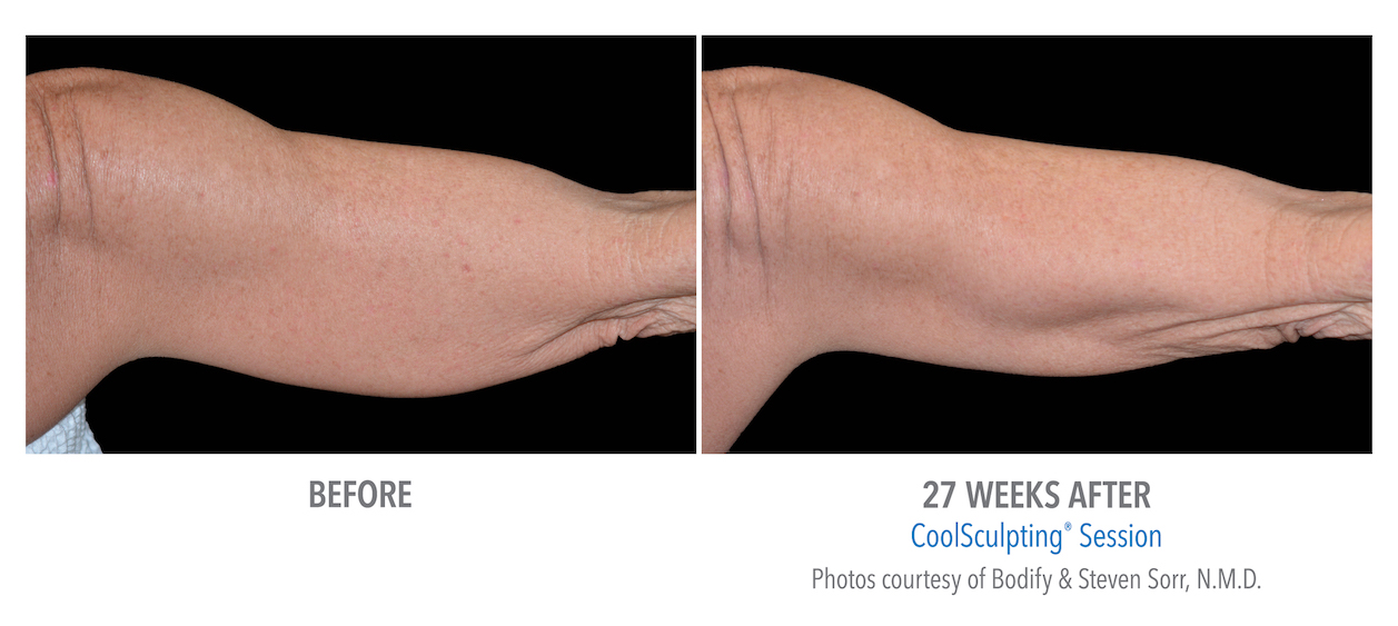 Coolsculpting arm weight loss in whittier
