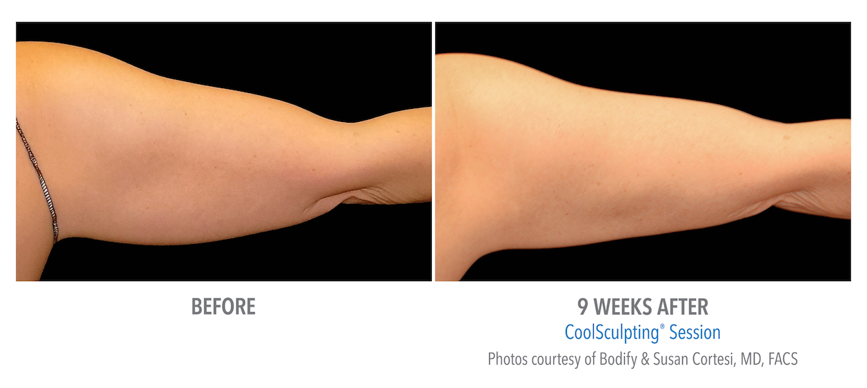 Coolsculpting arms whittier