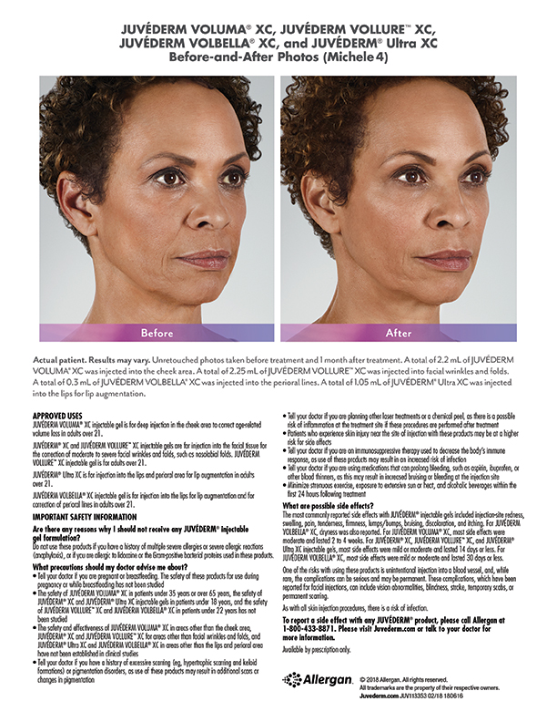 Juvederm-before-after-Michele