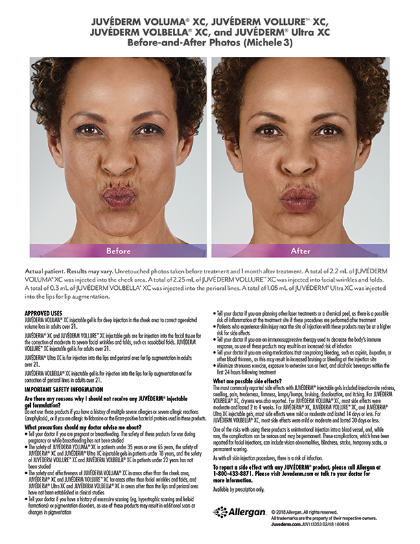 Juvederm whittier-before-after-Michele