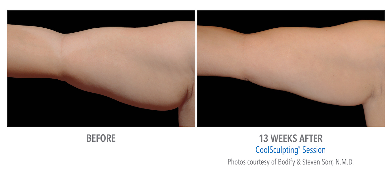 arm coolsculpting whittier