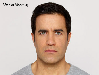 botox-before-after-caucasian-male-whittier-month3