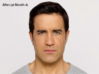 botox-before-after-caucasian-male-whittier-month4