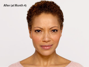 botox-before-and-after-african-american-south-bay-month4