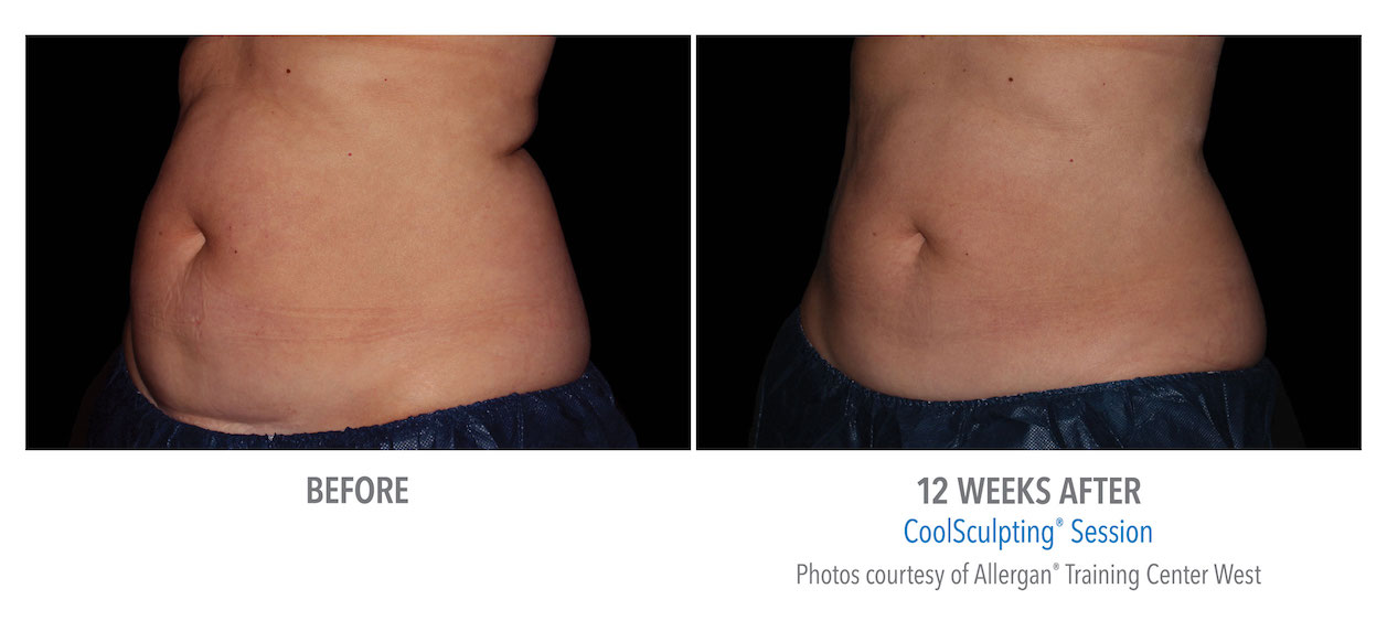 coolsculpting-stomach-abdomen-fat-loss-whittier