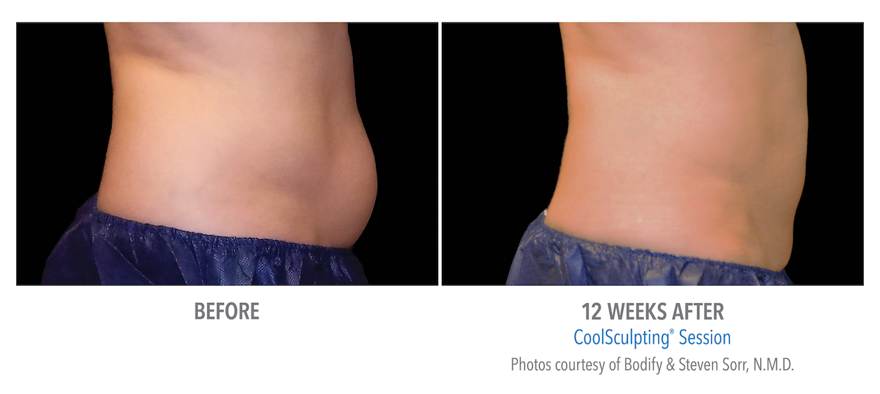 coolsculpting-stomach-fat-loss