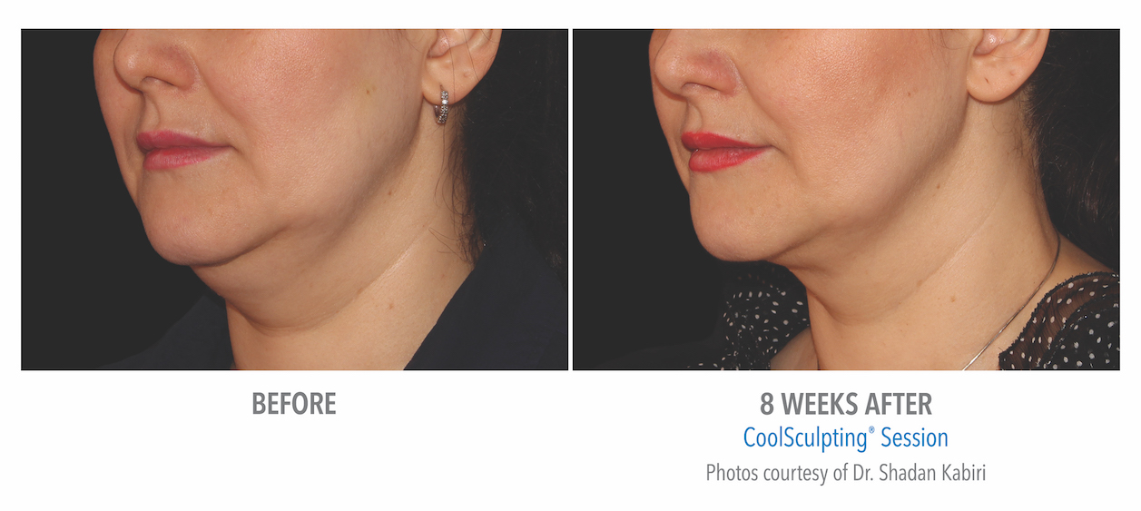 coolsculpting-under-chin-women-in-whittier-coolsculpting