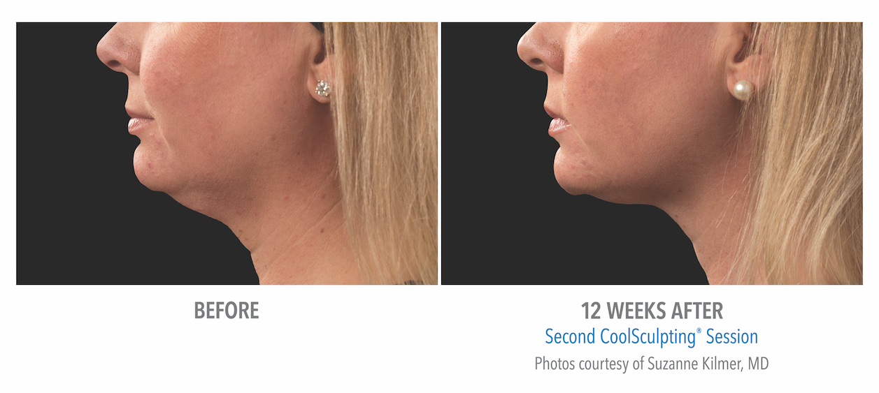 coolsculpting-under-chin-women-near-whittier