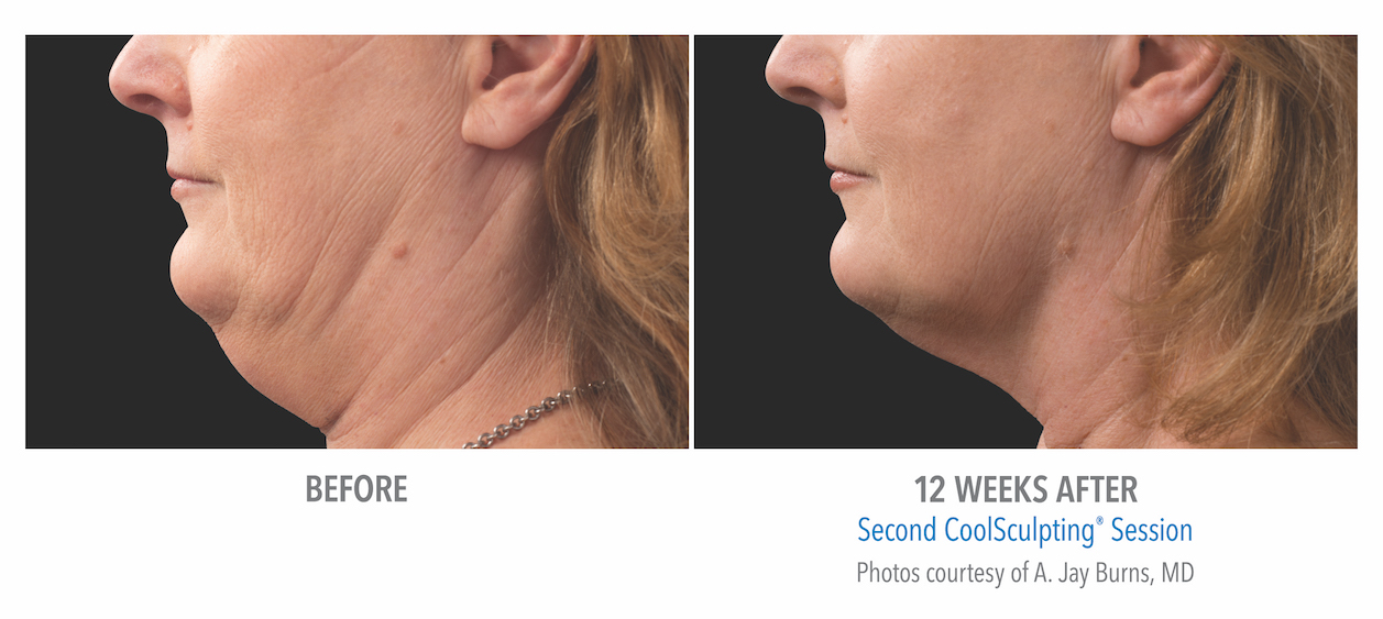 coolsculpting-under-chin-women-whittier-coolsculpting