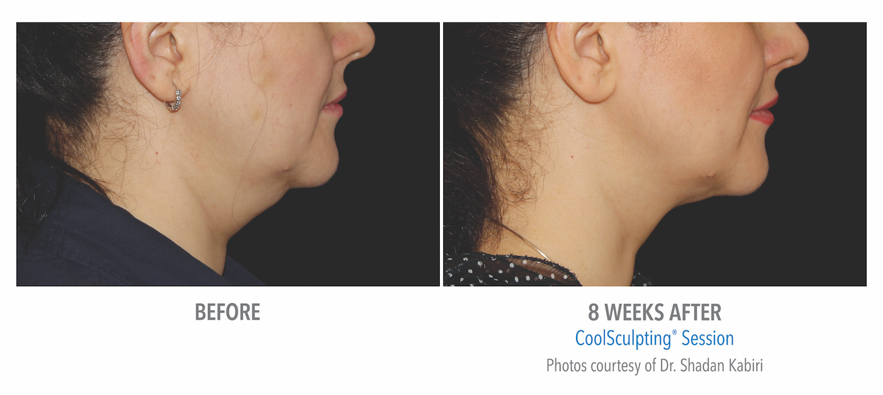 coolsculpting-under-chin-women