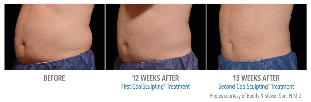 mens coolsculpting stomach near whittier