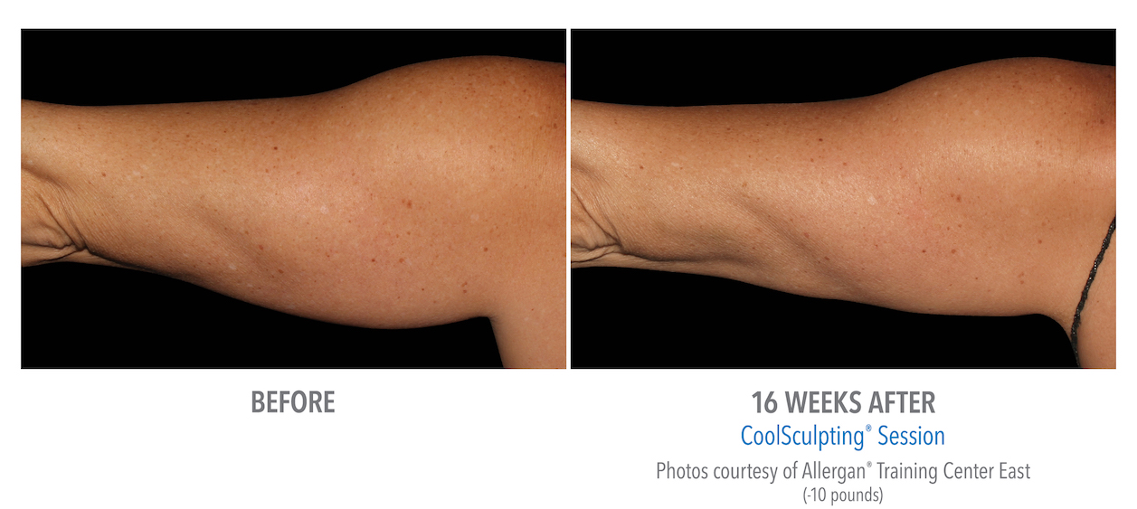 whittier-Coolsculpting arm Fat los