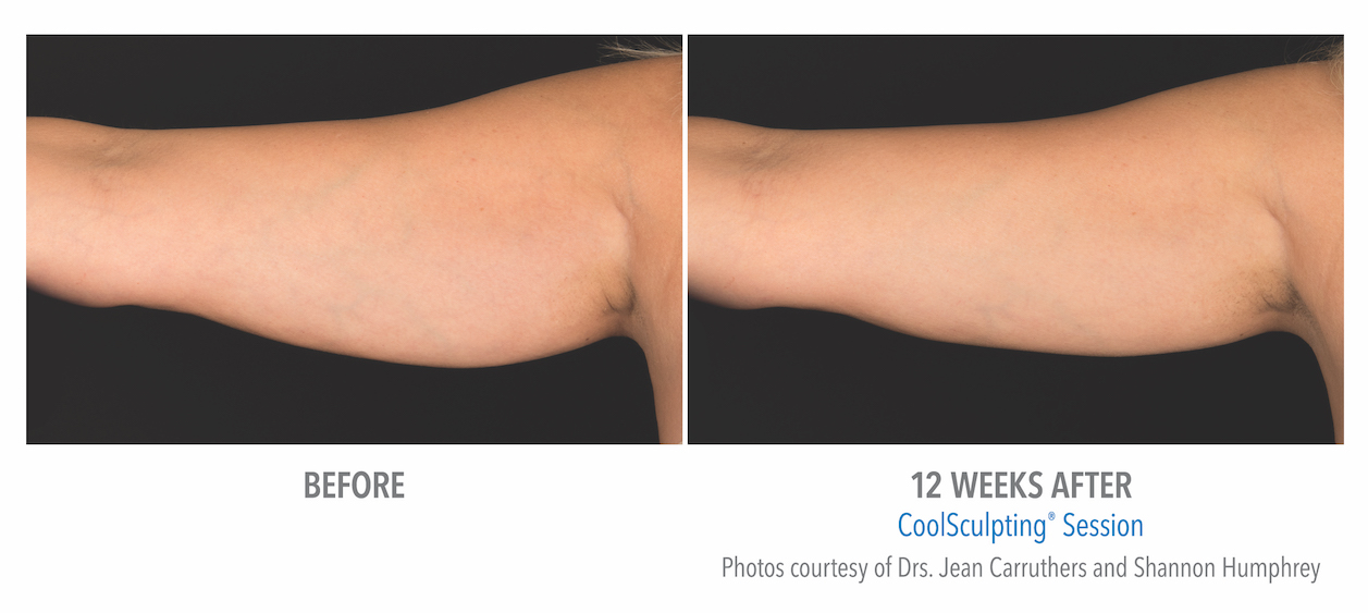 whittier Coolsculpting arm Fat