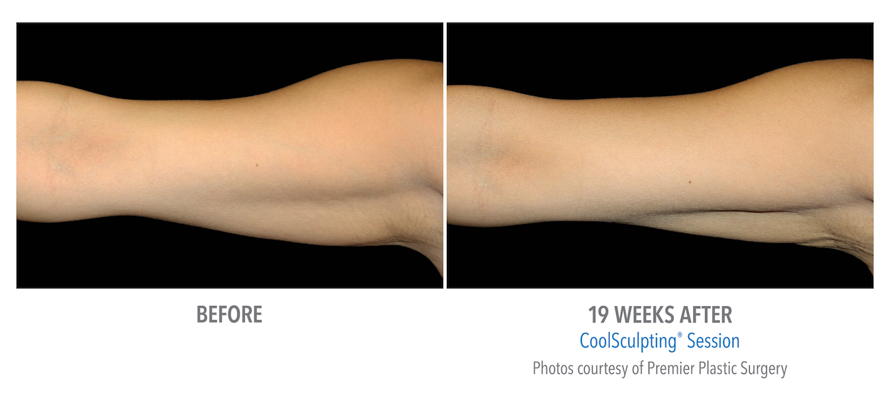 whittier Coolsculpting arm weight loss