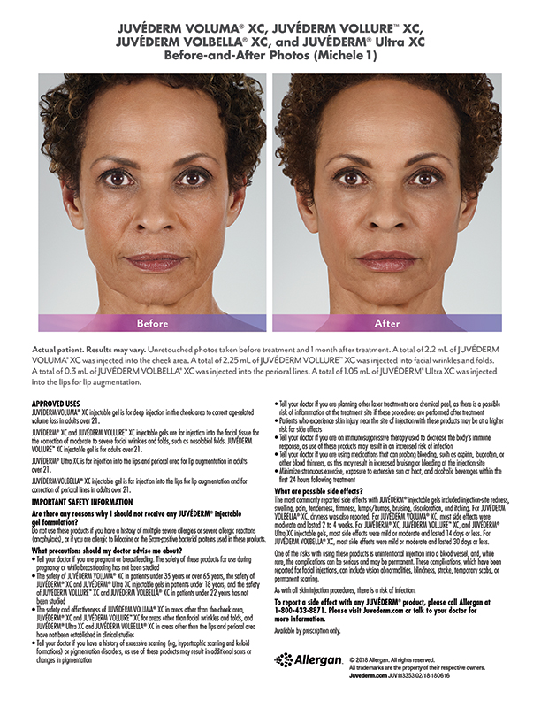 whittier-Juvederm-before-after-Michele