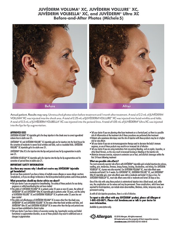 whittier-Juvederm-before-after-injectables-Michele