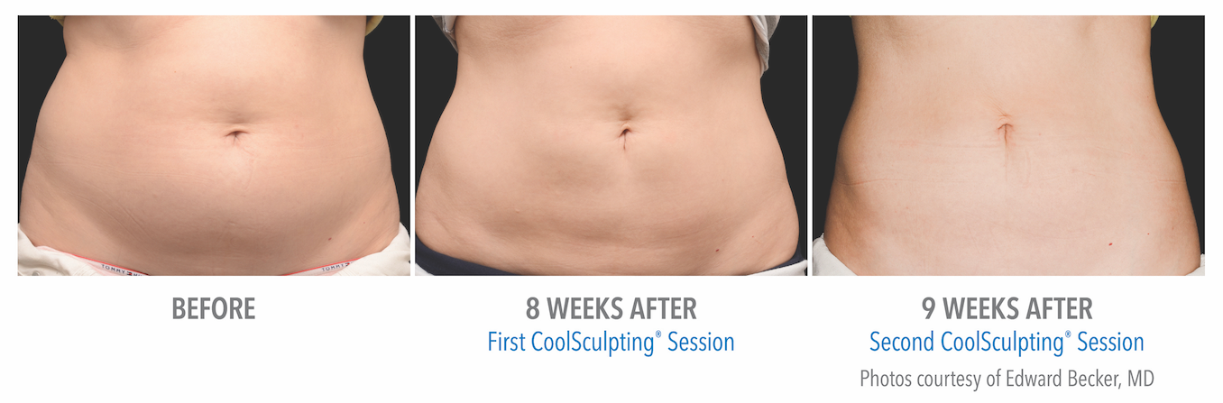 whittier-coolsculpting-stomach-fat-loss
