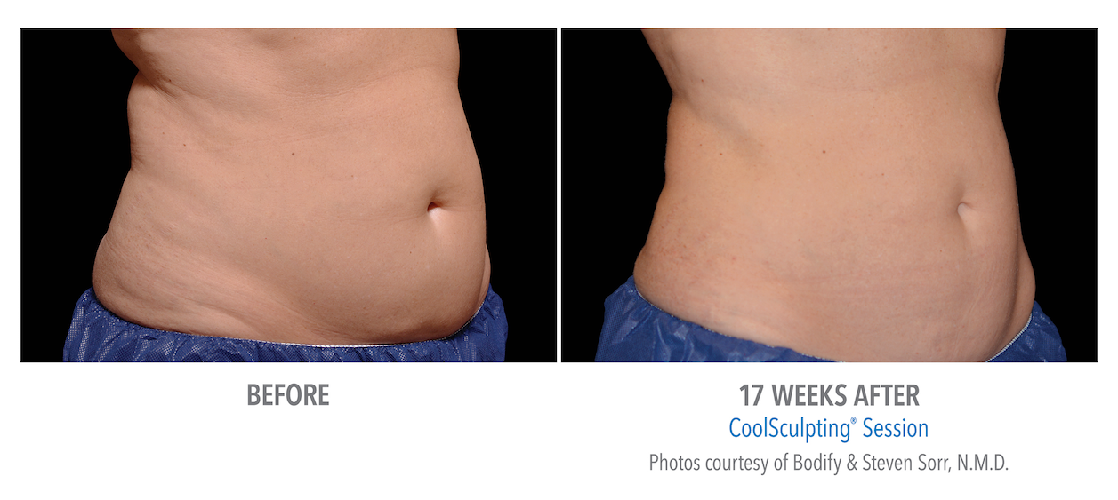 whittier-coolsculpting-stomach-weight-burn