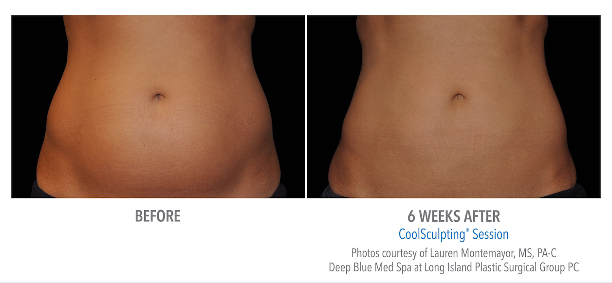 whittier-coolsculpting-stomach-weight-loss