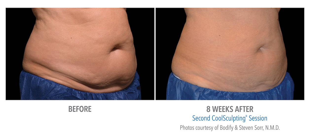 whittier-coolsculpting-stomach