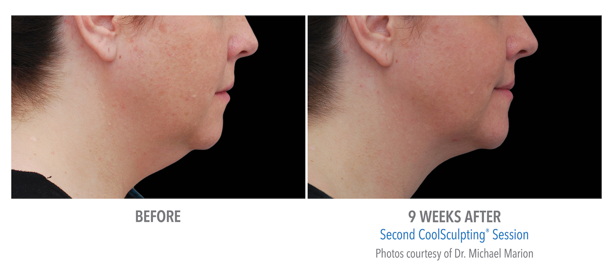 whittier-coolsculpting-under-chin-women-coolsculpting