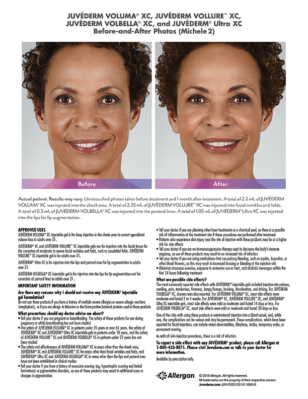 whittier-medical-Juvederm-before-after-Michele