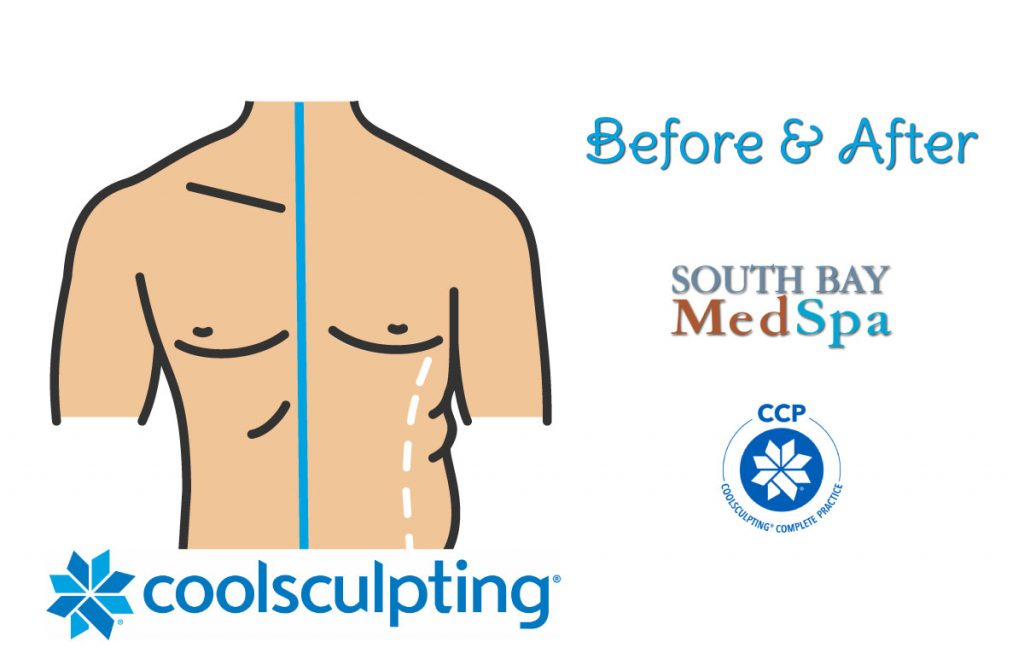 coolsculpting-mens-before-afters
