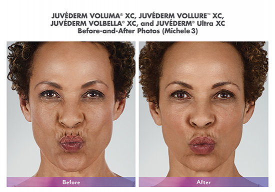 juvederm-before-after-whittier-medical-spa