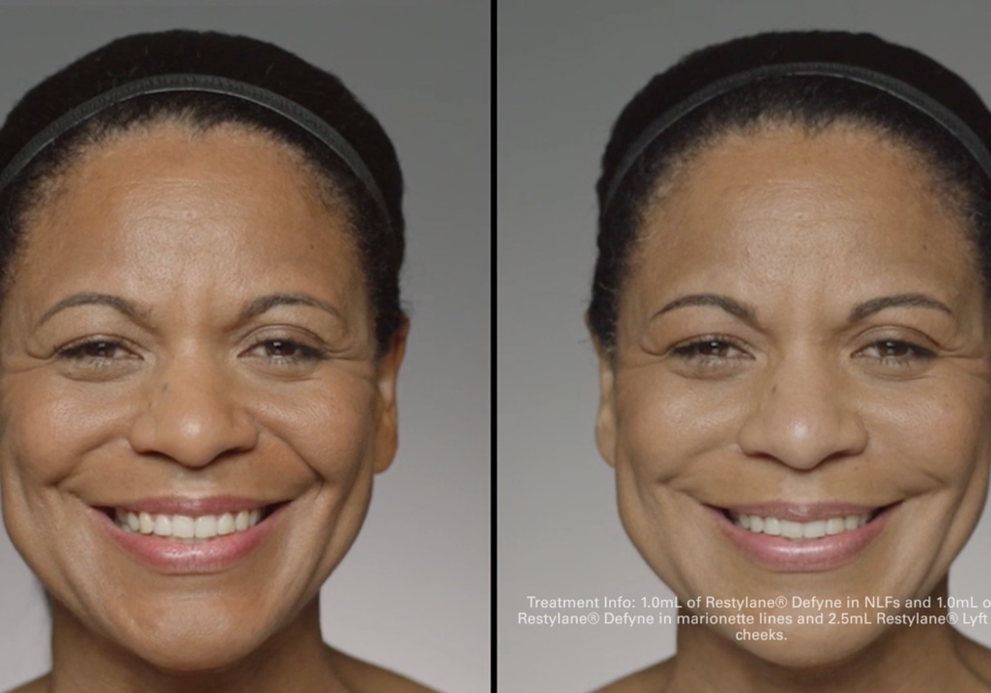 restylane-before-after-whittier